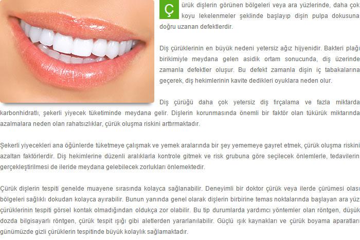 Diş çürükleri Dr özcan çakmakcıoğlu